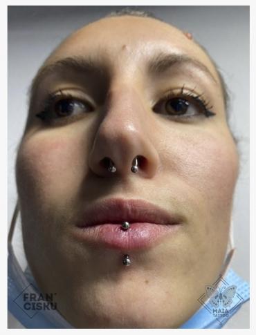 Fotografia di un viso di donna con Piercing vertical labret su labbro inferiore, con gioiello classico, eseguito da Francesco Deschino presso il Maia Tattoo di Milano Cornaredo